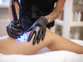 Sėdmenų pakėlimo ir kojų liekninamoji, stangrinamoji ir anticeliulitinė procedūra