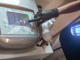 Raukšlių naikinimo, veido ovalo pakėlimo procedūra su radio dažnio aparatu RFX3-3D