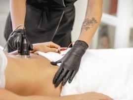 Juosmens liekninamoji, stangrinamoji, anticeliulitinė procedūra